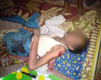 Rohingyas injured in fights between AA and Tatmadaw