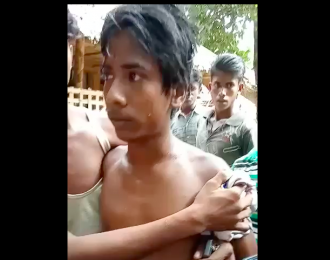 A Rohingya teenager hit by bullet in Buthidaung